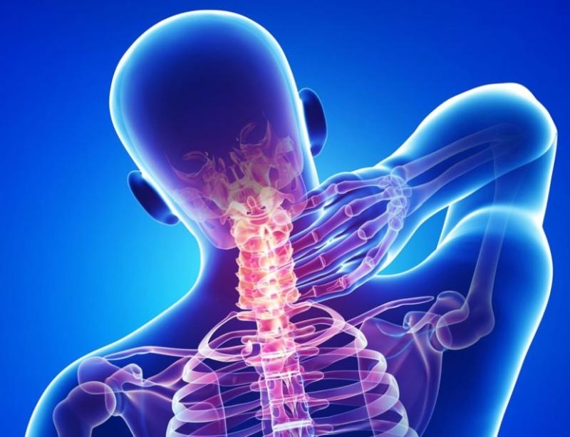 Локализация болевых синдромов в шее