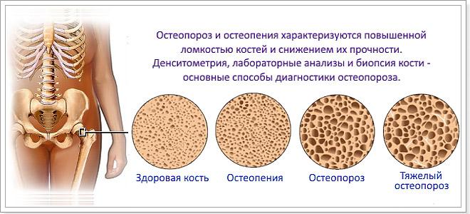 Различные степени недуга