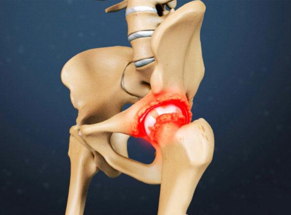 Процесс воспаления костей
