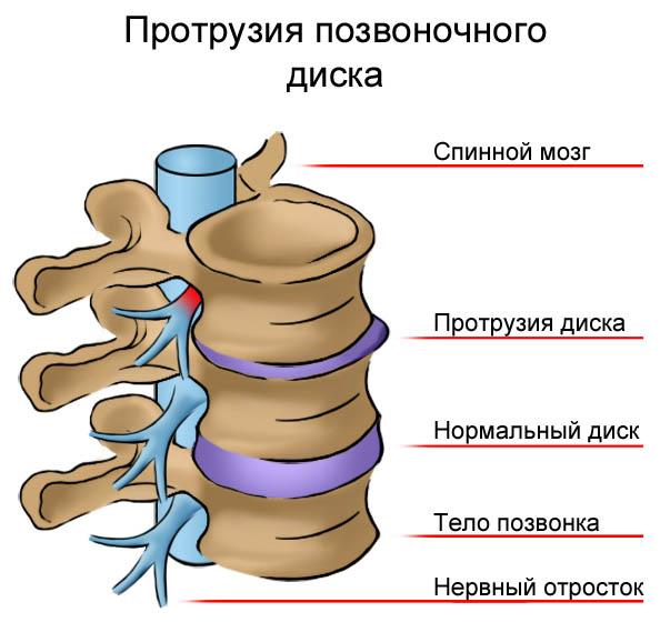 Вид нормального и пораженного диска
