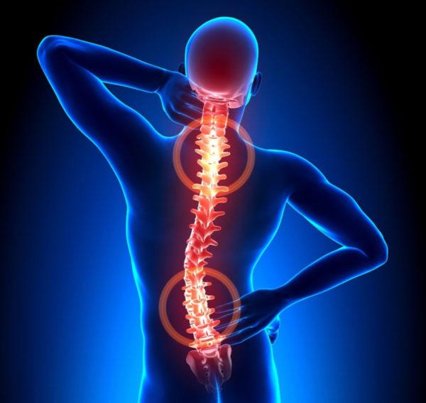 Остеохондроз как причина заболевания