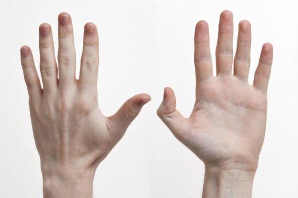 Изображение - Суставы кистей рук анатомия 736156-e1491363142114