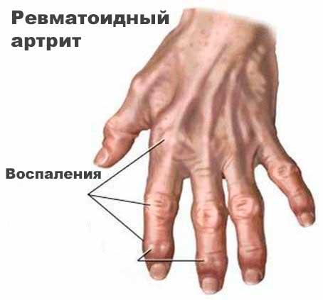Ревматоидный артрит как причина серонегативного