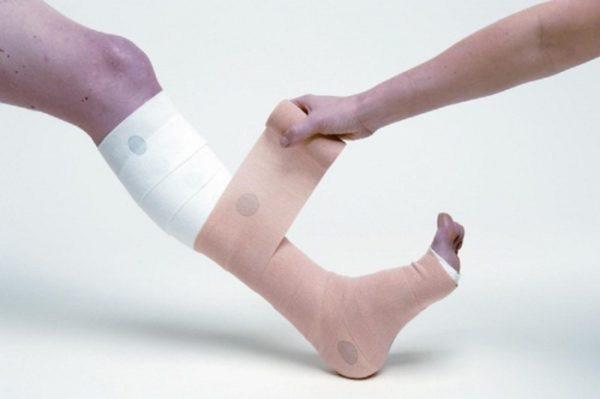 Забинтованная эластичным бинтом нога