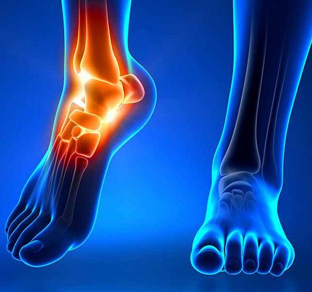 Изображение - Лечение голеностопного сустава народными средствами FootPain800-640x600