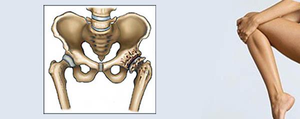 Симптомы при болях в тазобедренном суставе
