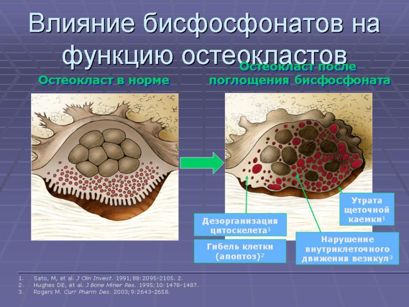 Влияние бисфосфонатов на костную ткань