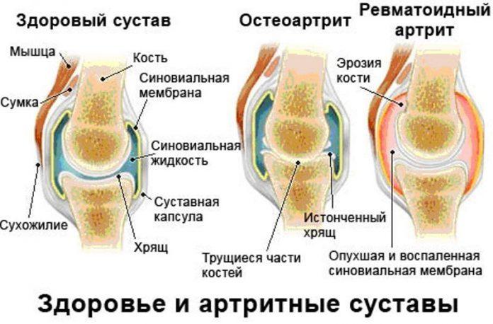 Сравнение здорового и артритных суставов