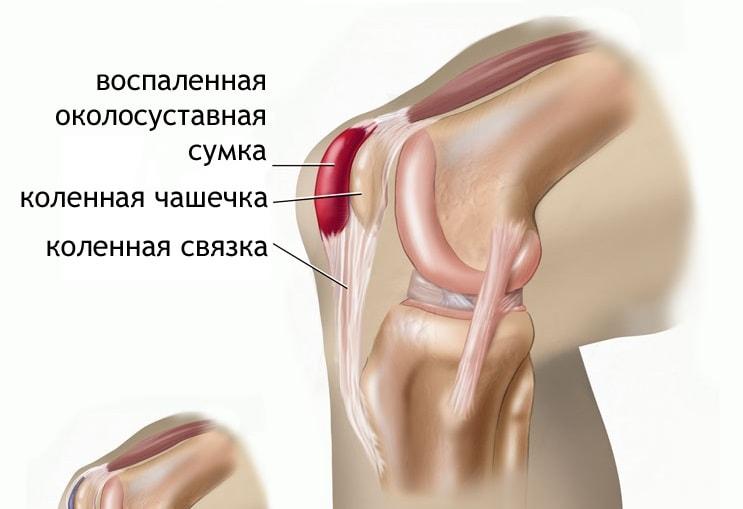 Сильно болит колено