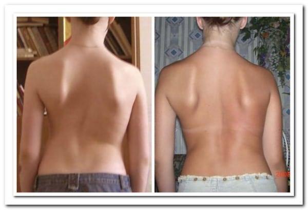 Искривление спины