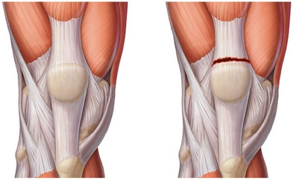 Вид разрыва в коленном суставе