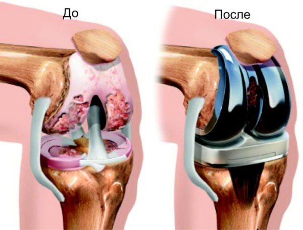 Изображение - Сколько на больничном после эндопротезирования коленного сустава sustav-protez-e1492484146640