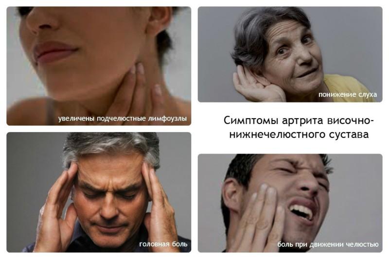 Симптомы артроза ВНЧС