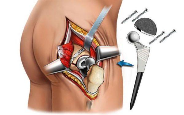 Изображение - Осложнения после операции на тазобедренном суставе 13-15-e1496046358429