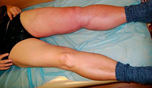 Изображение - Осложнения после операции на тазобедренном суставе 25169324-ostryy-tromboflebit-nizhney-konechnosti-e1496061183705