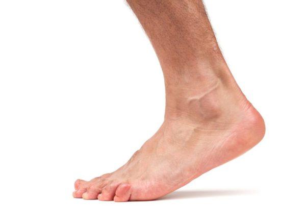 Изображение - Заболевания голеностопных суставов ног 3-26-e1495631991165