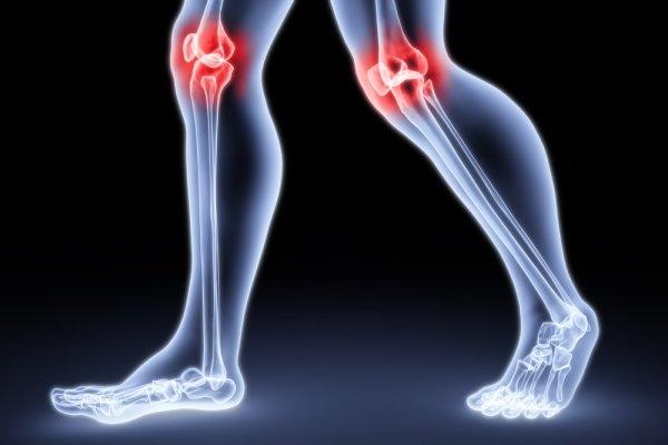 Изображение - Осложнения после операции на тазобедренном суставе 32-2