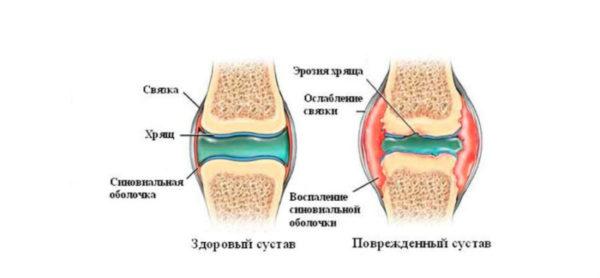 Изображение - Жидкость в суставах симптомы Sinovialnaya-obolochka-pri-povrezhdenii-sustava-e1494275416338