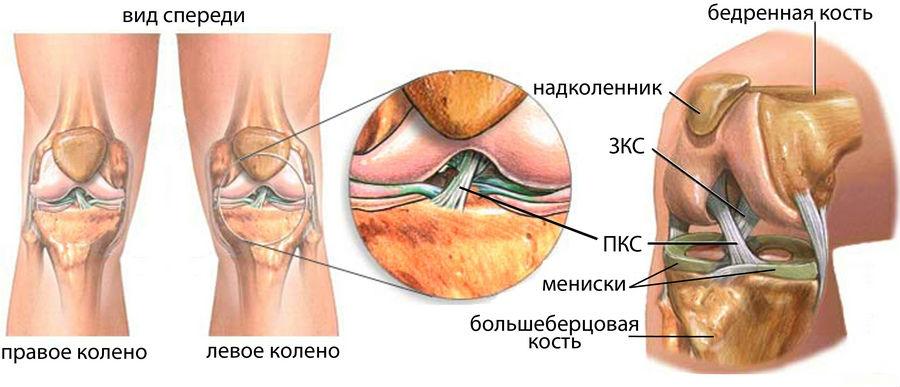 Изображение - Передняя крестообразная связка коленного сустава анатомия povrejdenie-sv-kolsu-2