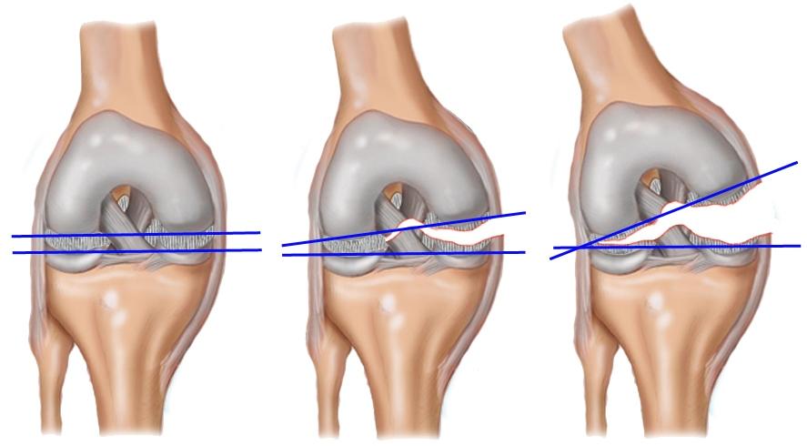 Изображение - Передняя крестообразная связка коленного сустава анатомия stepeni-razriva