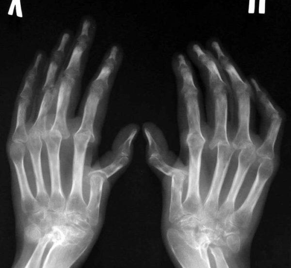 Определение стадий ревматоидного артрита по рентгенологическим признакам