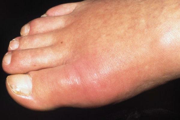 Изображение - Снять воспаление сустава пальца ноги 2