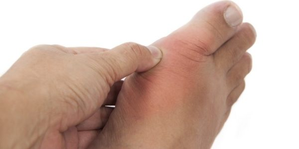 Изображение - Снять воспаление сустава пальца ноги 4-1-e1496395121586