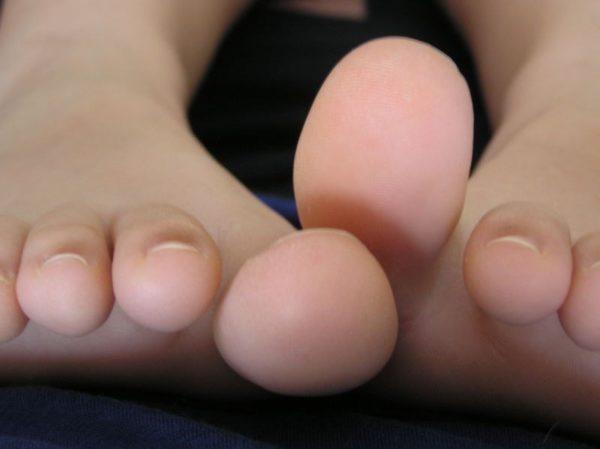 Изображение - Снять воспаление сустава пальца ноги 5-e1496395189830