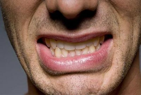 Изображение - Нарушение челюстного сустава agriya_yol_acan_24_neden_231-e1496482789112