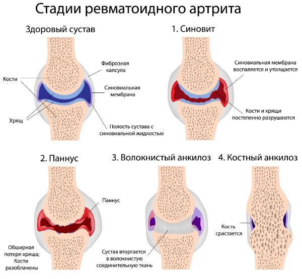 Изображение - Проблемы суставов ног artrit-sustavov-stopy-stadii