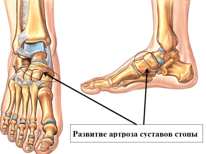 Изображение - Проблемы суставов ног artroz-stopi