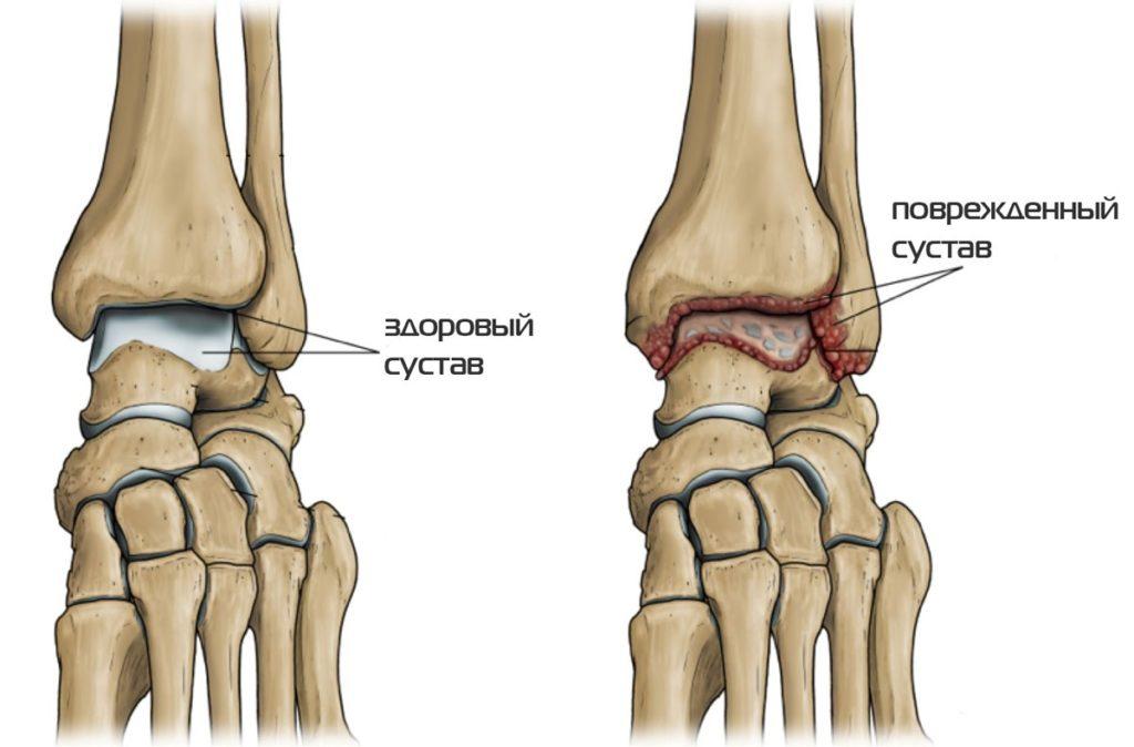 Изображение - Проблемы суставов ног c7b70a04-c9d6-4fb1-8aaf-6aa5c41fa0da