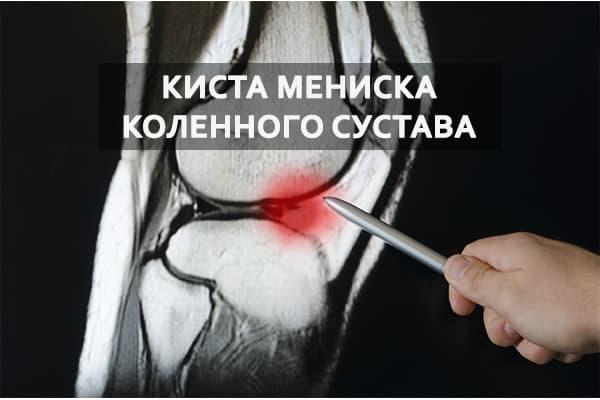 Изображение - Лечение кисты локтевого сустава kista-meniska