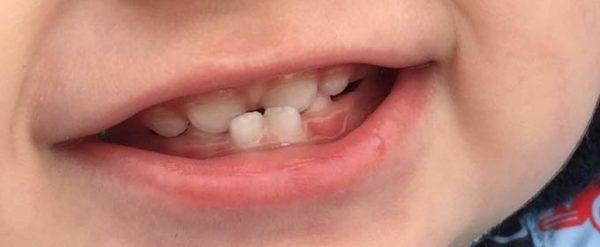 Изображение - Нарушение челюстного сустава nepravilniy-prikus-deti1-e1496482865925