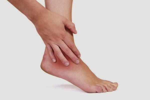 Изображение - После простуды болят суставы penyebab-kaki-bengkak-dan-cara-mengobati-kaki-bengkak