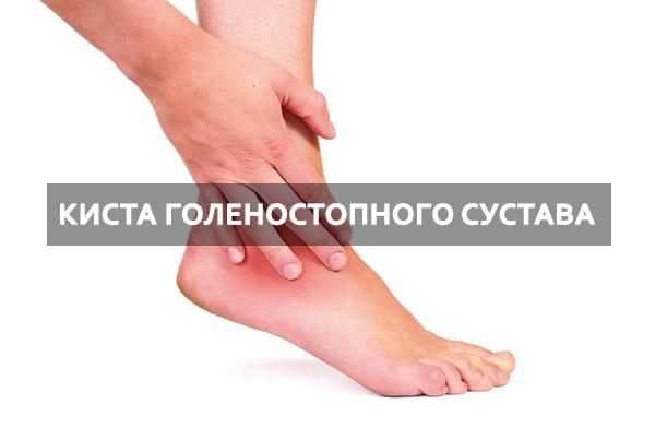 Изображение - Лечение кисты локтевого сустава priznaki-vospaleniya-zametny-srazu-kopiya