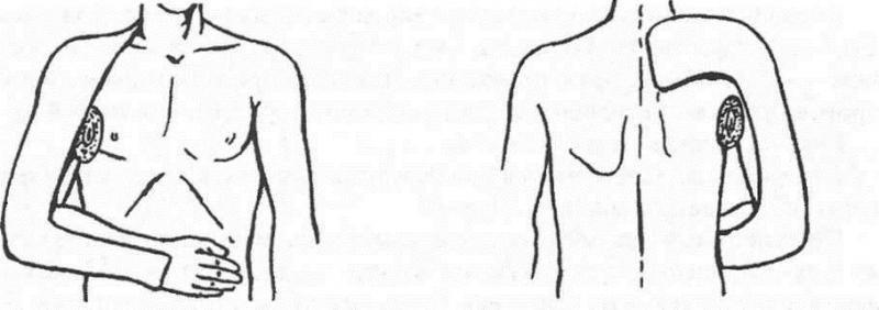 Изображение - Корсет при переломе плечевого сустава zadnyaya-gipsovaya-longeta-po-turneru