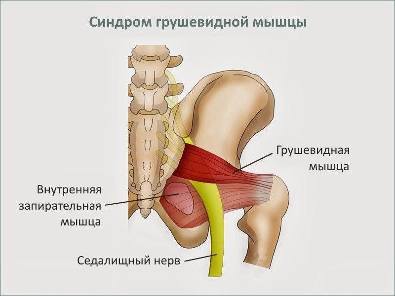 Изображение - Боль в паху от тазобедренного сустава 53db832e49e0a_