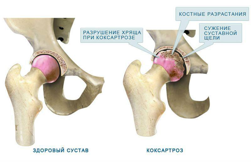 Изображение - Боль в паху от тазобедренного сустава bol-tazbed-su-3