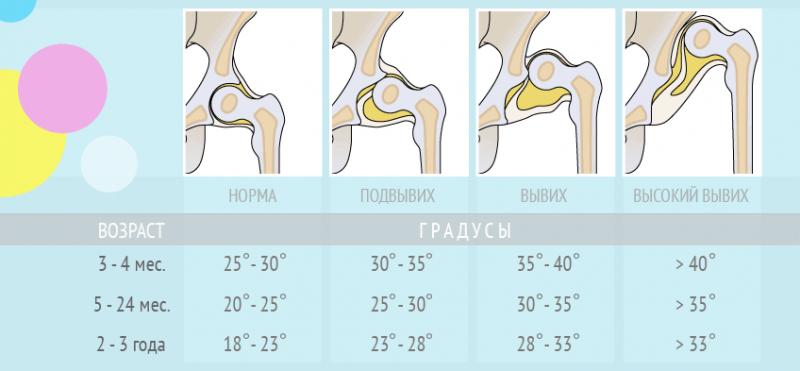 Изображение - Ядра тазобедренных суставов у детей displazija_ugly-1