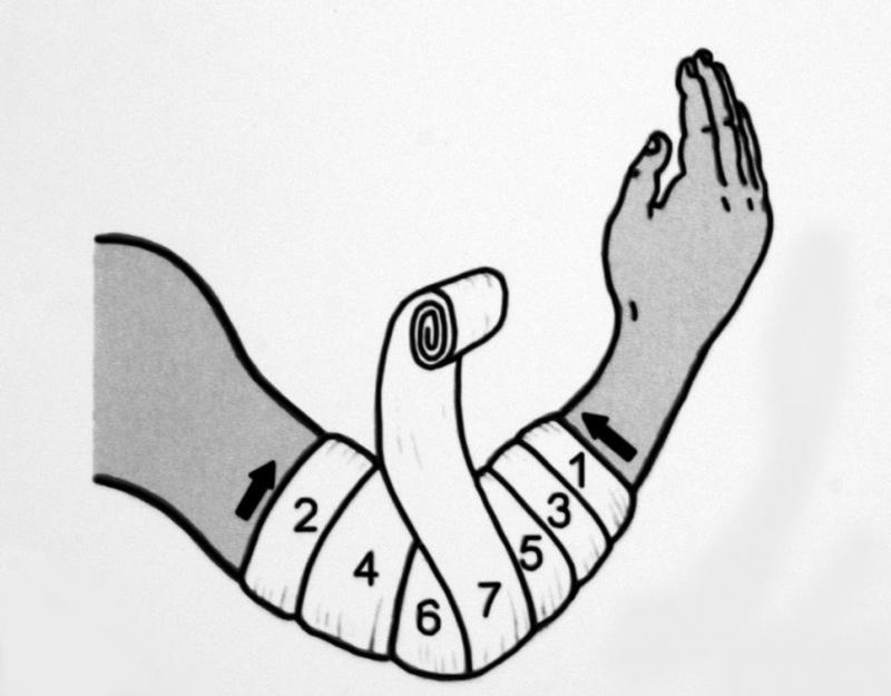 Изображение - Перевязка локтевого сустава img-aqzmk8