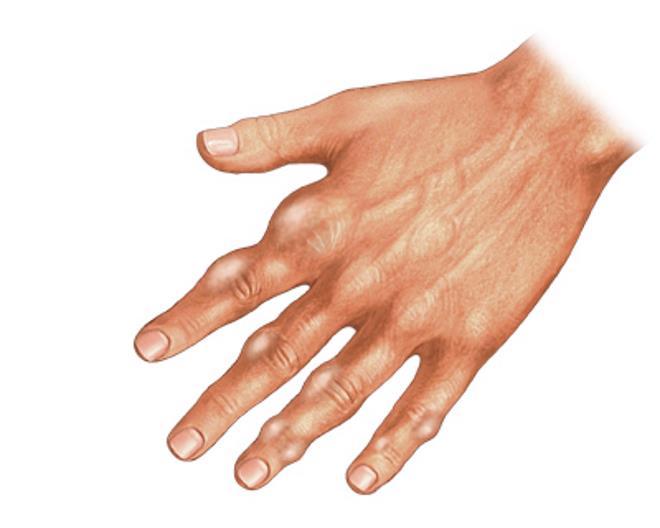 Растут косточки на пальцах рук: почему и что делать, как избавиться и лечение хряща, Ревматолог