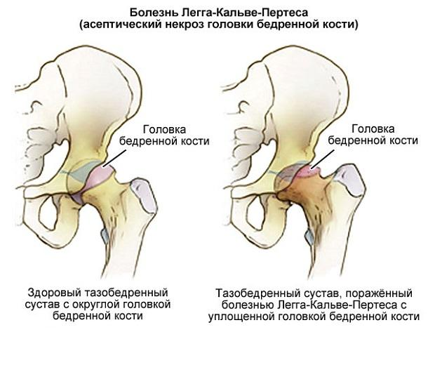 Изображение - Боль в паху от тазобедренного сустава nekroz-golovki-kosti