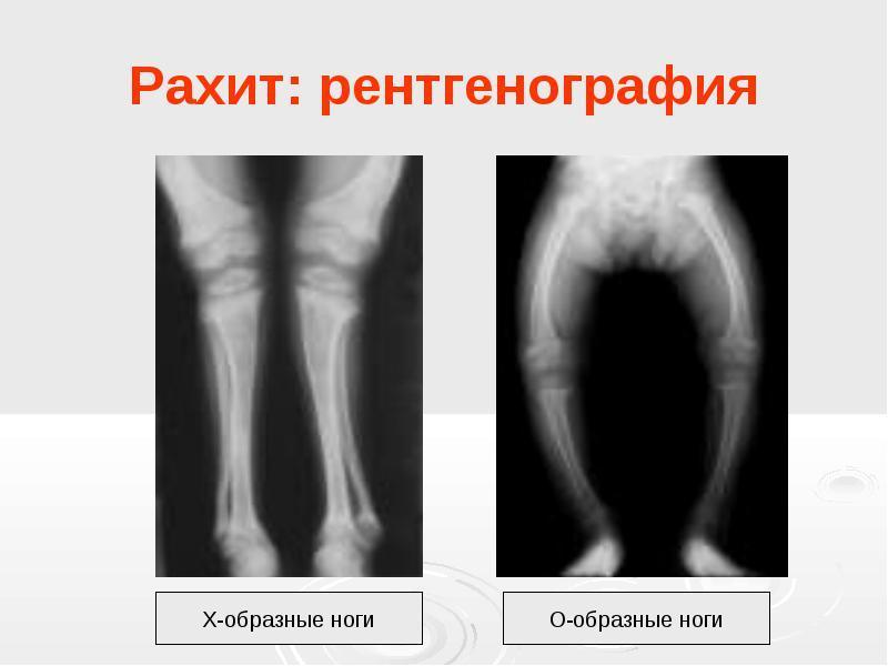 Изображение - Ядра тазобедренных суставов у детей original
