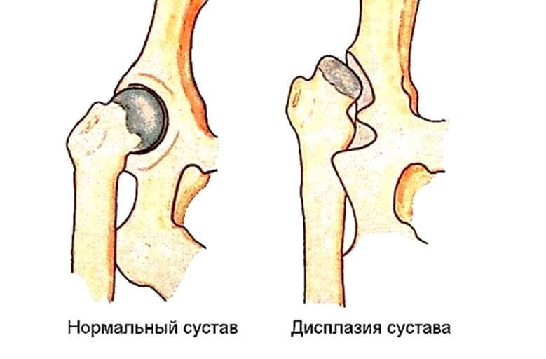 Изображение - Ядра тазобедренных суставов у детей risunok1_16